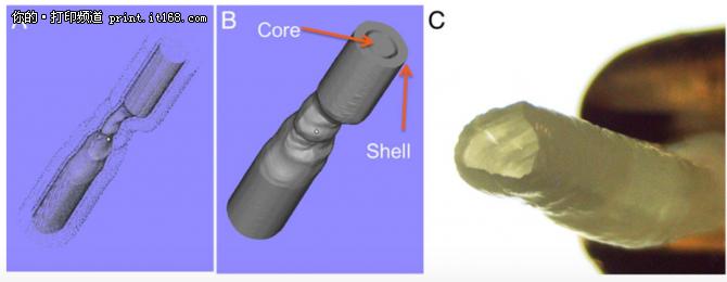3D打印人体器官 提升医疗健康水平
