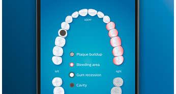 这些年的牙算是白刷了 因为你少了