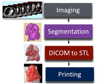 3D打印技术在先天性心脏病的医学应用!