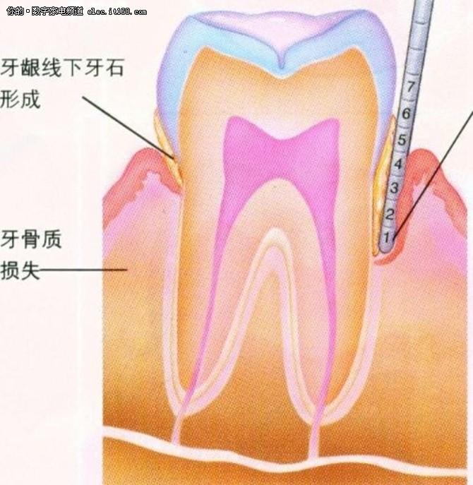 告别牙齿问题 waterpik洁碧冲牙器体验