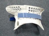 【实战案例】3D打印技术在颈托的设计