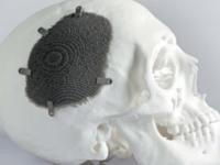 金属3D打印的魅力---多孔结构