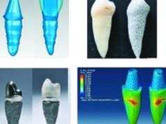 3D打印牙齿技术又有新突破 降费提效!
