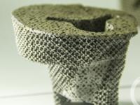 重庆医生实现全球首例3D打印关节修复术